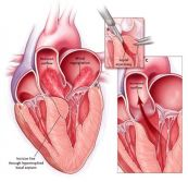 Bệnh cơ tim phì đại vùng đỉnh trên điện tâm đồ
