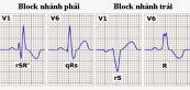 Block nhánh phải và block nhánh trái trước trên điện tâm đồ