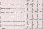 Mắc sai dây chuyển đạo trước tim khi làm điện tâm đồ
