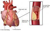 Nhồi máu cơ tim bán cấp vùng thành trước
