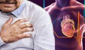 Viêm màng ngoài tim sau nhồi máu cơ tim cấp tính