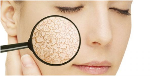 Da khô và cách chăm sóc da khô hiệu quả tại nhà