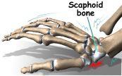 Bệnh gãy cổ tay - Triệu chứng, nguyên nhân và cách điều trị
