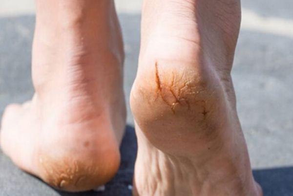 Các cách trị nứt nẻ gót chân hiệu quả