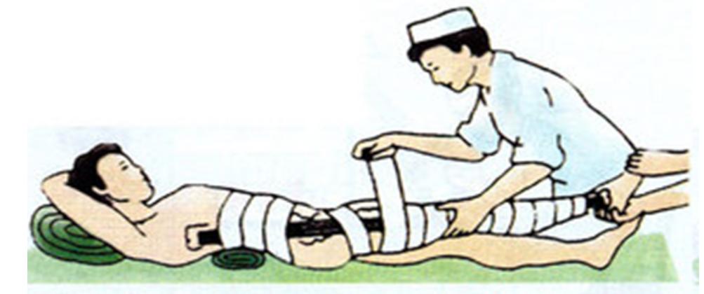 Hình 12.4 Băng bó cho người gãy xương chân
