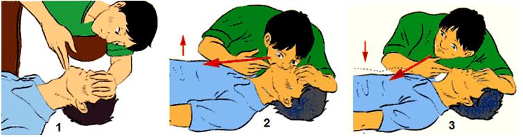 Hình 23.4 Các bước thực hành hô hấp nhân tạo