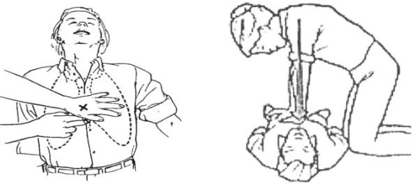 Hình 23.5 Cac bước thực hành xử lí nạn nhân ngạt thở