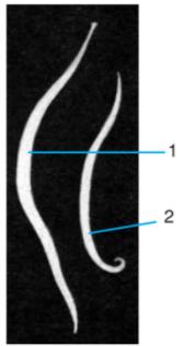 Hình dạng ngoài của giun đũa