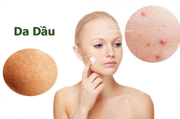 Da dầu rất dễ sinh mụn, gây vết thâm, sẹo rỗ nên cần chăm sóc kỹ lưỡng